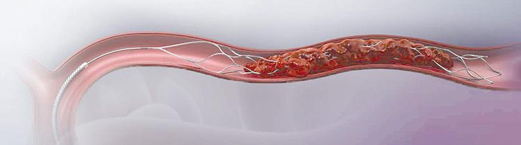 TREVO(血栓回収療法)